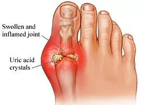 Gout: What is it and How is it Treated?