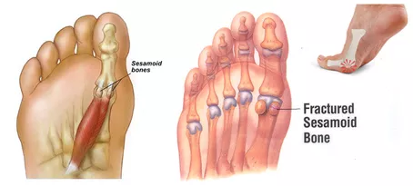 Sesamoiditis Explained